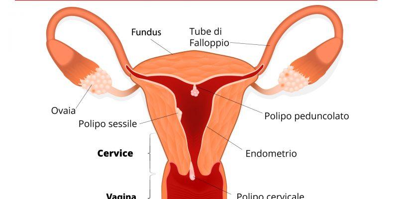 Polipo endometriale: cause, sintomi e terapia