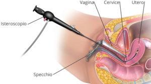 Isteroscopia Diagnostica a Napoli
