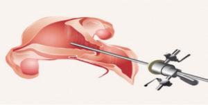 Isteroscopia Operativa