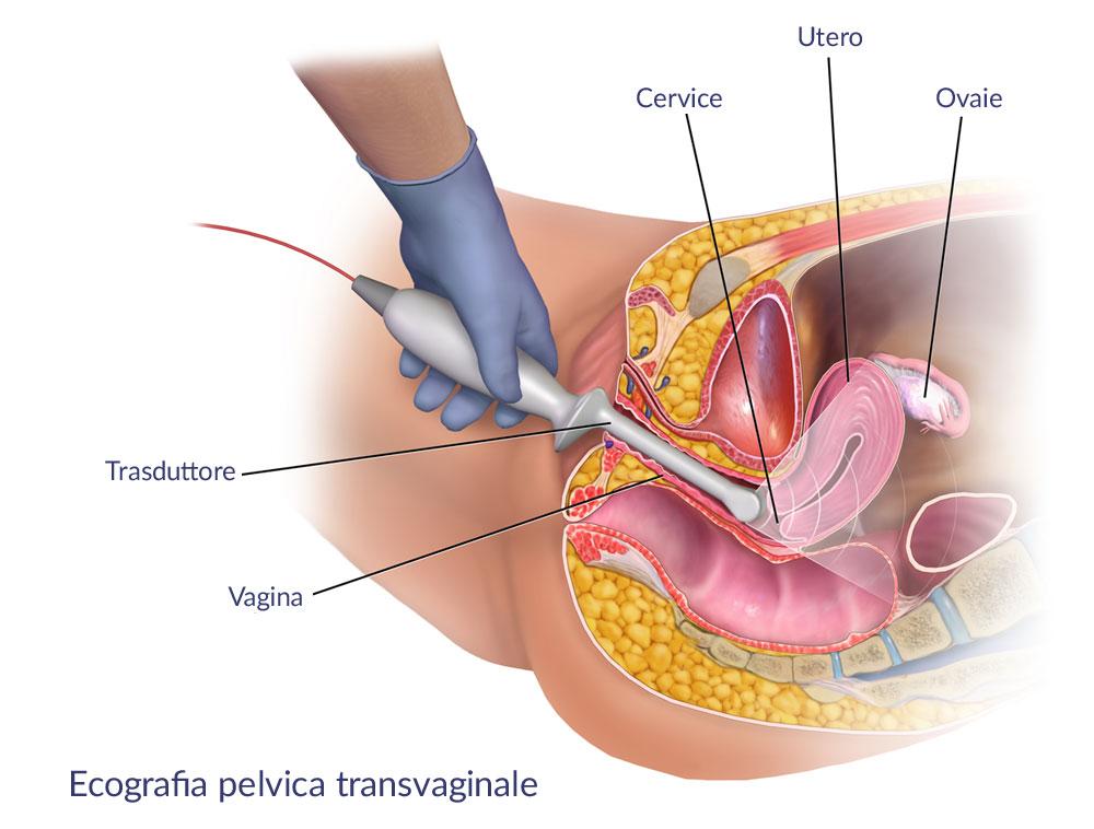Ecografia pelvica transvaginale a Napoli