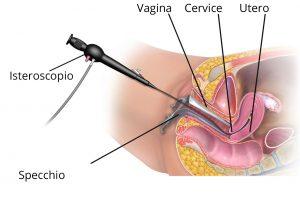 Isteroscopia diagnostica al vomero