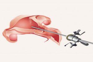 Isteroscopia operativa vomero